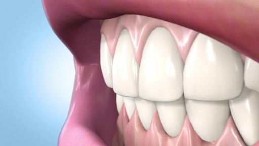 Sonic Blue Teeth Whitening System - image 10 from the video