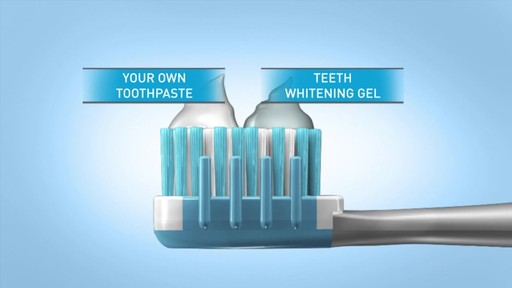Sonic Blue Teeth Whitening System - image 4 from the video