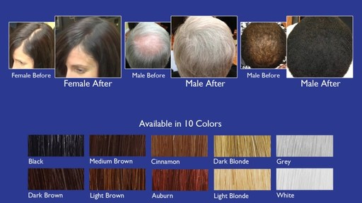 Infinity Hair Fibers: Hair Loss Concealing Fibers for Men & Women - image 9 from the video